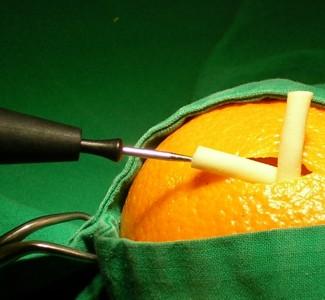 Sterilisation des Mannes (Vasektomie) - Urologische Praxis